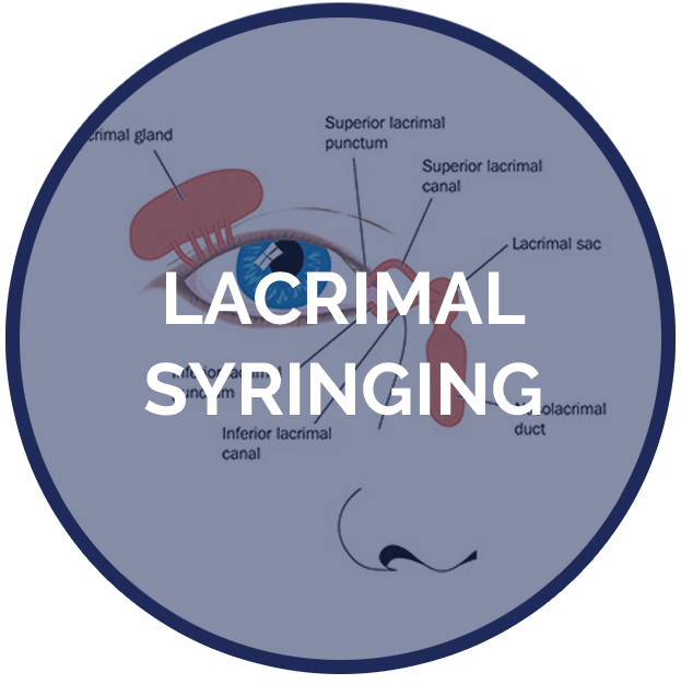 Services Pages Lacrimal Syringin